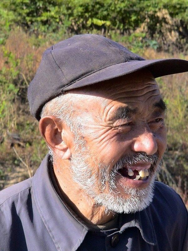 broken teeth